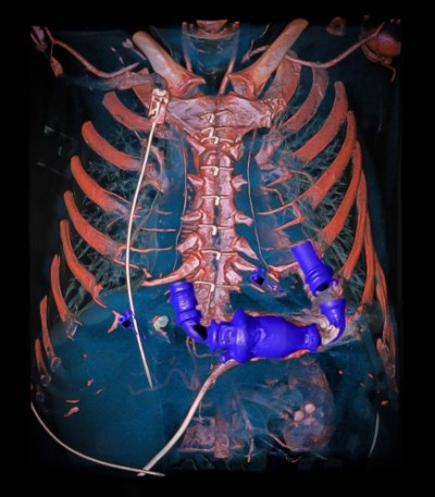 Bomba mecánica de corazón